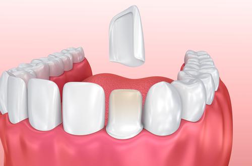 Illustration of Dental Veneer