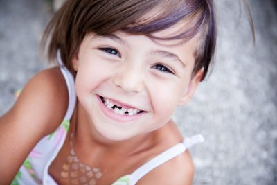 Little girl with big smile and missing teeth