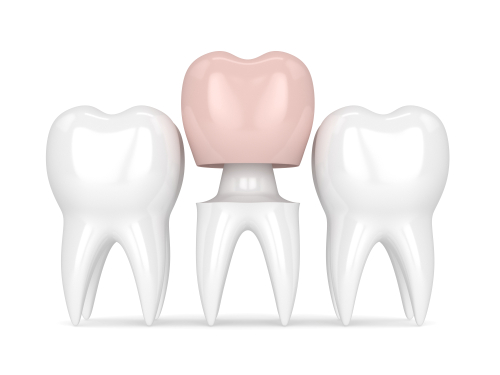 img-blog-3d render of teeth with dental crown restoration over white background