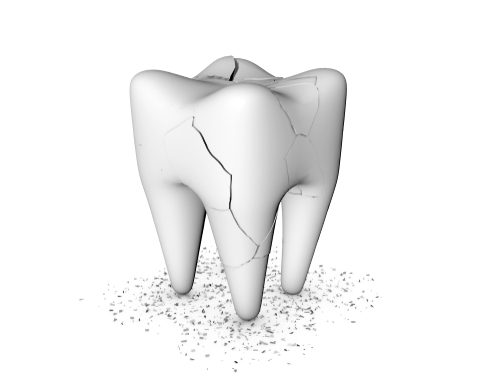 Cracked Teeth: What Can Happen to Them and What Can Be Done to Fix Them?