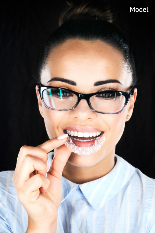 head and shoulders of woman with strong white teeth looking at camera and smiling-img-blog