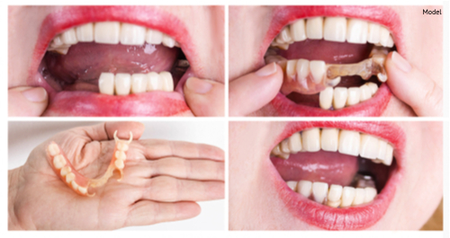 dental rehabilitation with lower flexible nylon denture, before and after treatment-img-blog