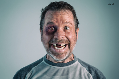 man with a black eye and missing teeth apparently happy about it-img-blog